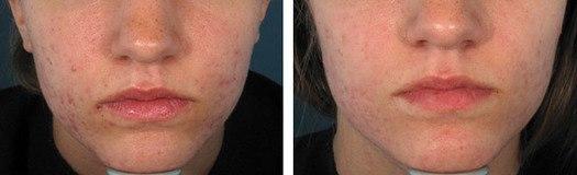 Akne i ansigt, før/efter behandling