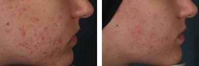 Akne på kind, før/efter behandling