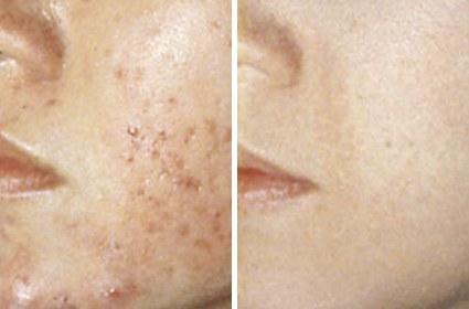 Akne ar behandling ansigt før/efter