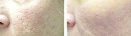 Behandling af akne ar med Fractional Laser, før/efter