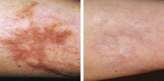 Forbrændingsar på arm, før/efter behandling