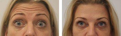 Botox behandling i panden, før/efter