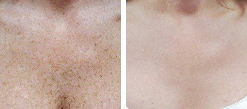 Behandling af pigmentpletter på øvre brystparti, før og efter