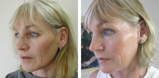 Før/efter Dermoroller behandling i ansigtet