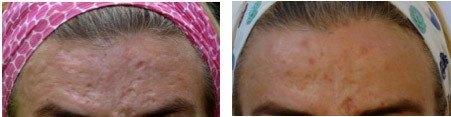 Akne ar i pande, før og efter behandling med Dermaroller