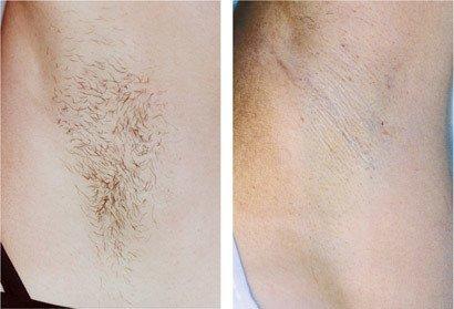 Hårfjerning armhule, før/efter