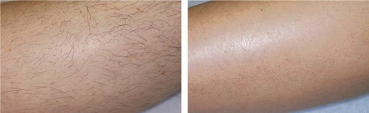 Hårfjerning på ben, før/efter permanent hårfjerning