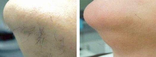 fjernelse af uønsket hårvækst i ansigtet