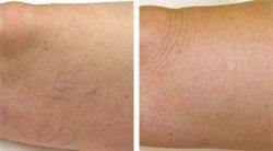Karsprængning på ben, før/efter behandling