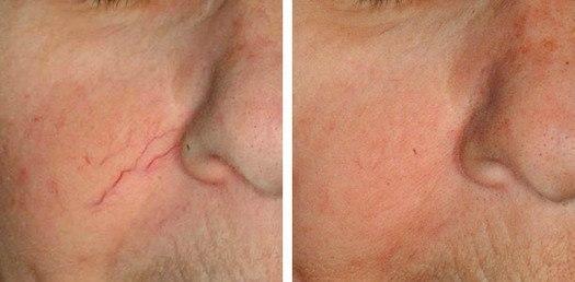 Karsprængning ved næse, før/efter behandling