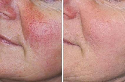 Karsprængninger på kinder, før/efter behandling