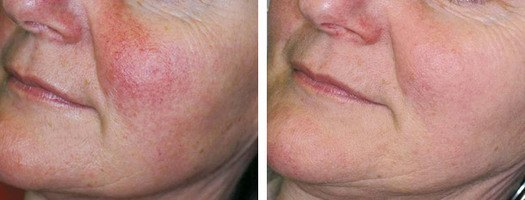 Behandling af karsprængninger på kinden, før/efter