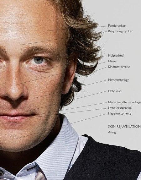 Behandlingsområder i ansigtet med ikke-permanente fillere for mænd