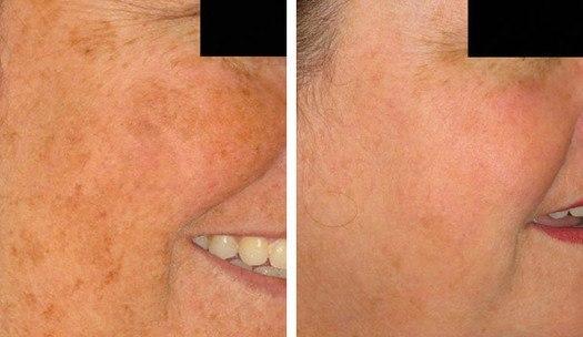 Behandling af pigment i ansigt med IPL, før/efter
