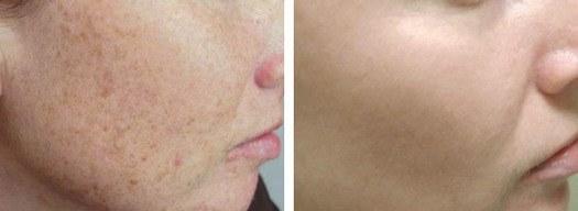 hvordan fjerner man blodsprængninger i ansigtet
