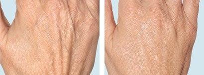 Hænder før og efter behandling med semi-permanente fillere