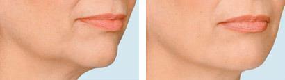 Hageparti kvindeansigt, før og efter behandling