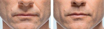 Hage og mundomgivelser, før/efter behandling med Radiesse