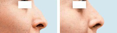 Næse før og efter behandling med Radiesse