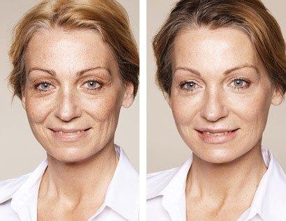 Behandling af rynker og furer i hele ansigtet inkl. under øjnene, før/efter