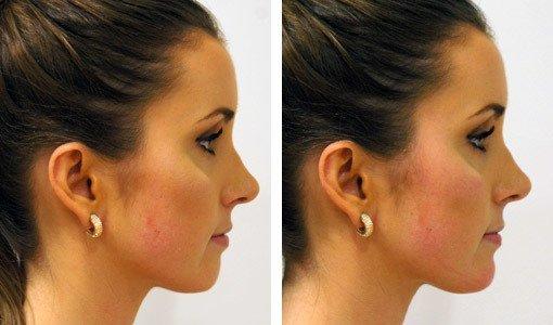 Ansigt fra siden, før/efter behandling med Restylane