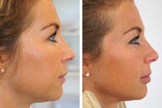 Kvindeansigt i profil, før og efter behandling