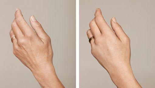 Behandling af solskadet hud på hænder med IPL og ikke-permanente fillere, før/efter