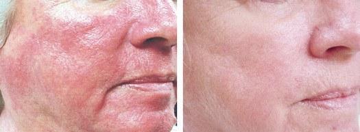 Rosacea behandling ansigt, før og efter