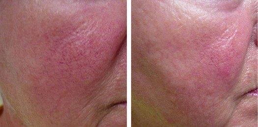 hudsygdom ansigt