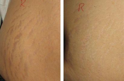 Strækmærker mave, før og efter behandling