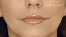 Underansigt kvinde, smukke læber