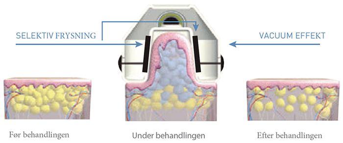 CoolTech fedtfrysning behandlingsprincip, illustration