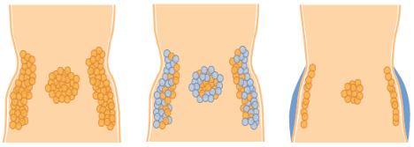 Fedtfrysning behandling, illustration af før/under/efter