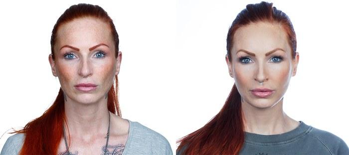 Anne Lindfjeld, før og efter behandlingsforløb, forfra