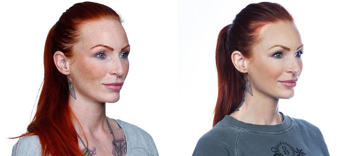 Anne Lindfjeld, før og efter behandlingsforløb, skråt forfra