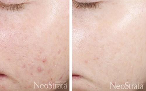 Retinol peeling mod akne i ansigtet - før og efter