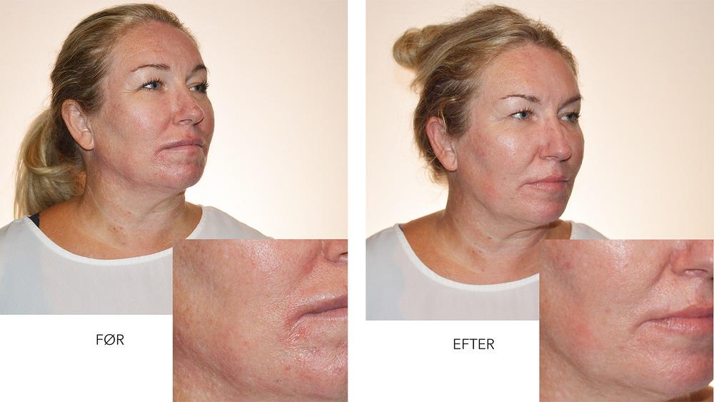 Kvindeansigt før og efter Restylane behandling