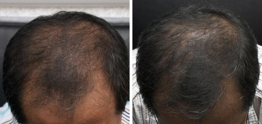 Hovedbund før og efter behandling mod hårtab