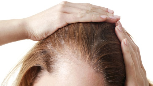 Hovedbund med hår
