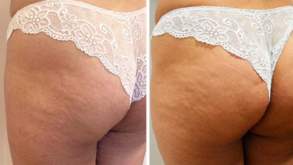 Butt-Lift før behandling og efter 2. behandling