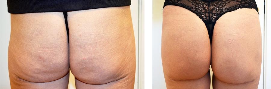 Butt-Lift før og efter 3. behandling