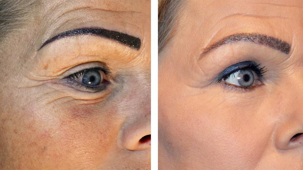 CO2 fractioneret laser under øjnene, før og efter 3. behandling
