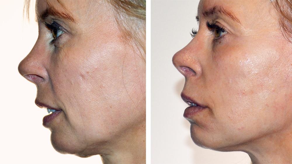 Belkyra og CO2 laser behandling, før og efter 3. behandling