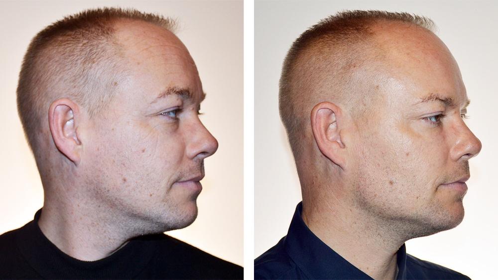 Før og efter Restylane behandling i kæbelinien