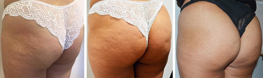 Butt-lift før, under og efter behandling