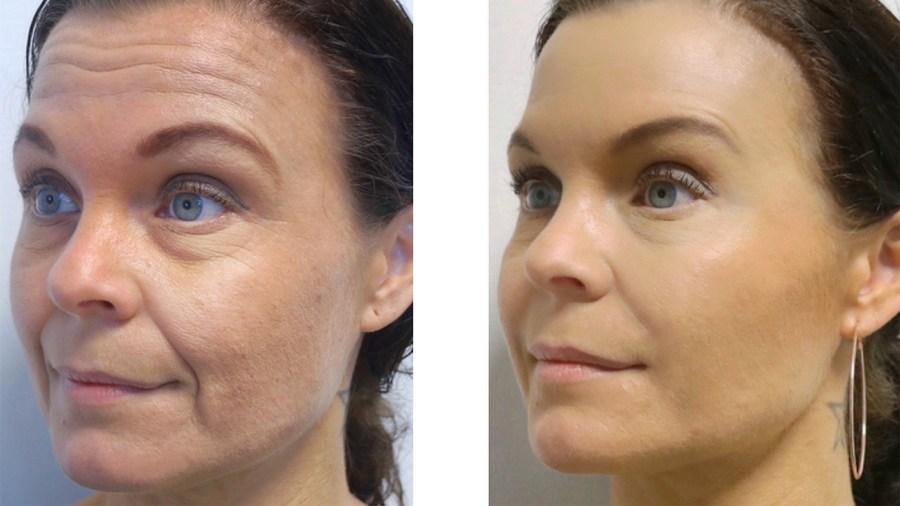 Restylane og Botox behandling - før og efter