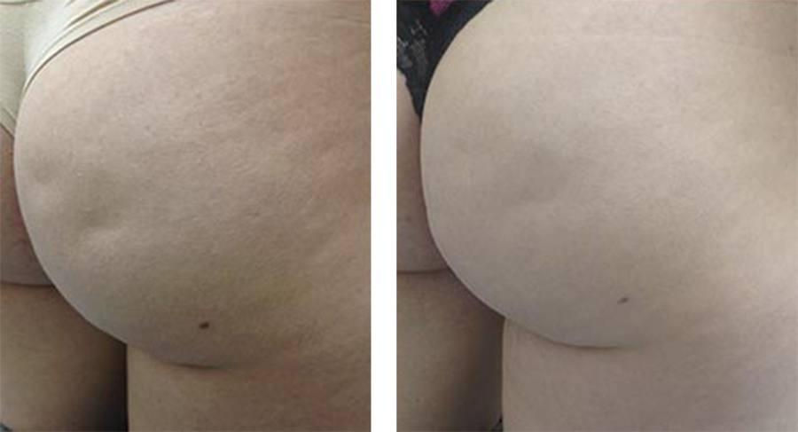 Bagdel før og efter behandling