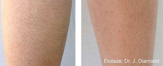 Hårfjerning på ben, før og efter behandling