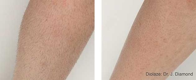 Hårfjerning på arm, før og efter behandling