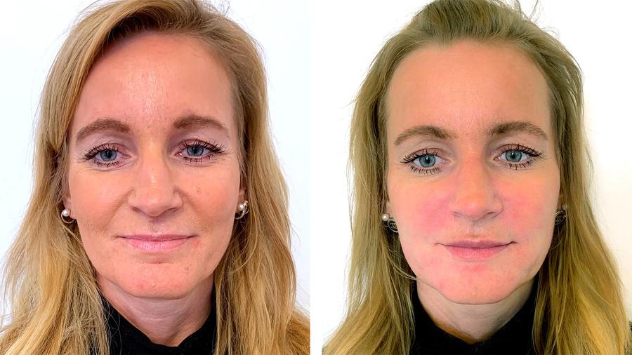 Ansigtsfurer før og efter behandling